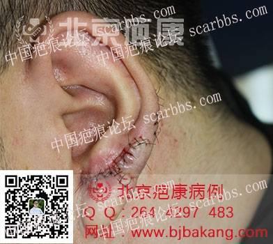 李先生左侧耳廓不明原因形成凸起疙瘩,曾先后手术切除...54-疤痕体质图片_疤痕疙瘩图片-中国疤痕论坛