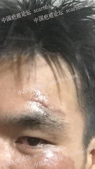 额头手术疤痕,怎么治疗好62-疤痕体质图片_疤痕疙瘩图片-中国疤痕论坛