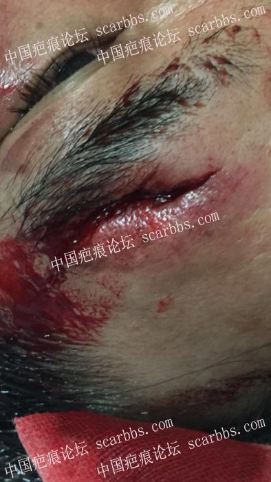 额头手术疤痕,怎么治疗好24-疤痕体质图片_疤痕疙瘩图片-中国疤痕论坛