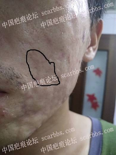 痘坑切除全程直播4月22日起,每天一更85-疤痕体质图片_疤痕疙瘩图片-中国疤痕论坛