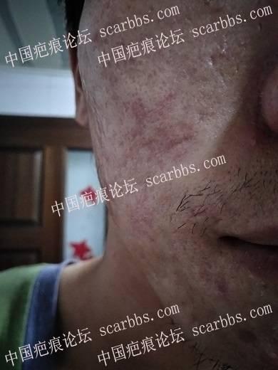 痘坑切除全程直播4月22日起,每天一更88-疤痕体质图片_疤痕疙瘩图片-中国疤痕论坛