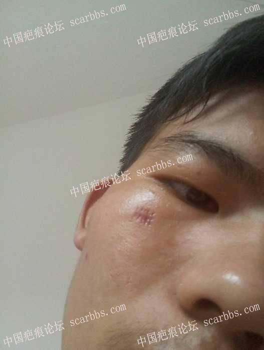切痣手术疤痕,怎么去掉52-疤痕体质图片_疤痕疙瘩图片-中国疤痕论坛