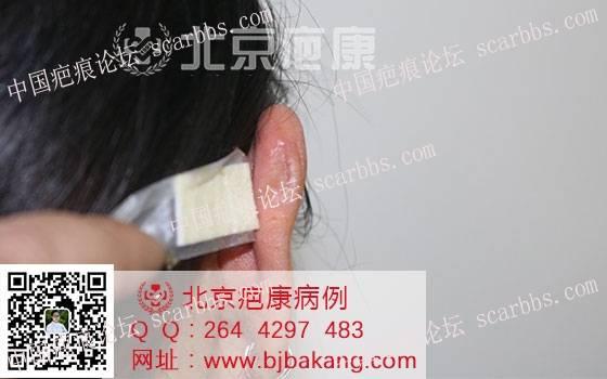 【疤痕预防】李女士耳朵疤痕疙瘩预防案例87-疤痕体质图片_疤痕疙瘩图片-中国疤痕论坛