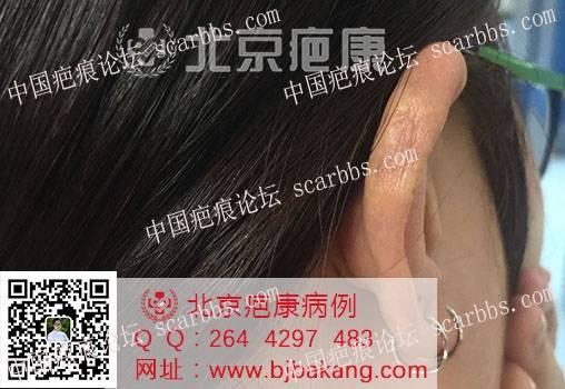 【疤痕预防】李女士耳朵疤痕疙瘩预防案例70-疤痕体质图片_疤痕疙瘩图片-中国疤痕论坛