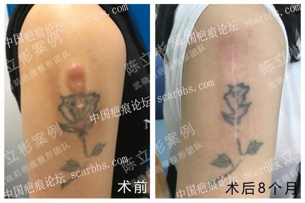 上臂疤痕疙瘩术后8个月复诊记录36-疤痕体质图片_疤痕疙瘩图片-中国疤痕论坛