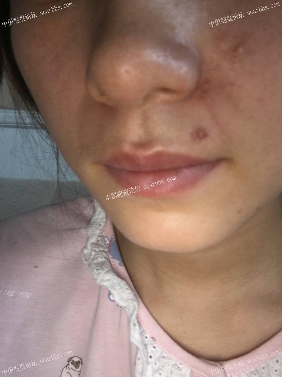 这个疤痕是疤痕疙瘩吗?71-疤痕体质图片_疤痕疙瘩图片-中国疤痕论坛