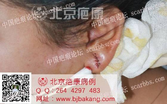卢女士耳垂疤痕疙瘩治疗案例分享36-疤痕体质图片_疤痕疙瘩图片-中国疤痕论坛