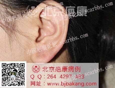 卢女士耳垂疤痕疙瘩治疗案例分享26-疤痕体质图片_疤痕疙瘩图片-中国疤痕论坛