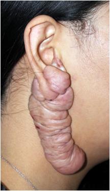 案例分享(疤痕修复-耳廓疤痕疙瘩修复案例)