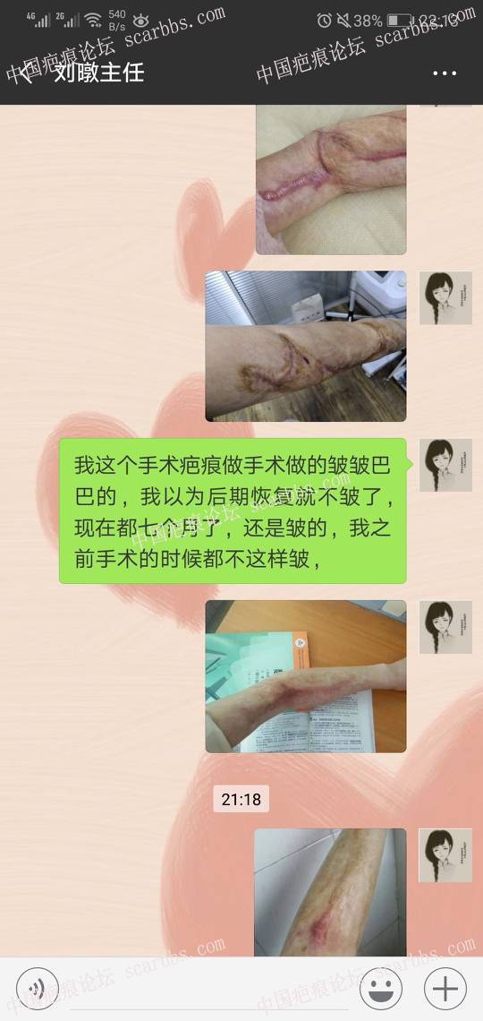 扩张器疤痕患者
