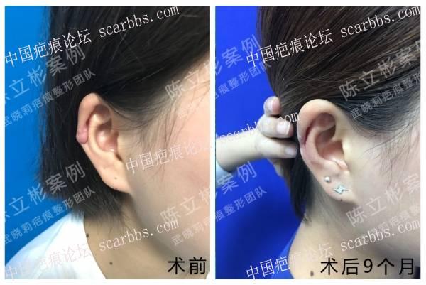 耳部疤痕疙瘩术后9个月复诊记录