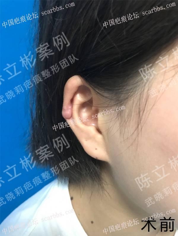 耳部疤痕疙瘩术后9个月复诊记录 耳部疤痕疙瘩,手术切除,术后放疗,