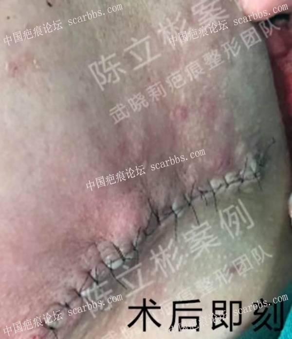 下颌疤痕疙瘩术后半年复诊记录 下颌疤痕疙瘩,减张精细缝合,术后放疗