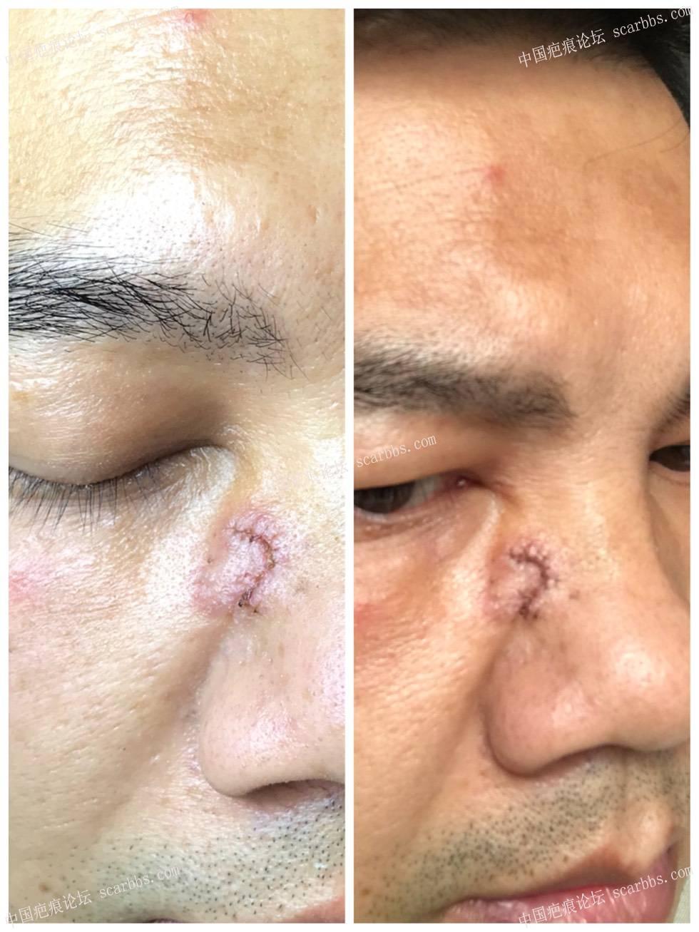 8月8,面部切缝手术,今天拆线