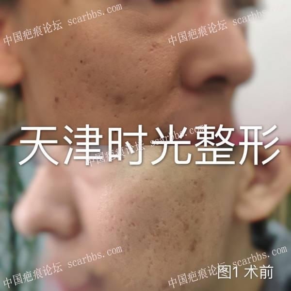 痘坑切缝+疤痕磨削术后半年对比96-疤痕体质图片_疤痕疙瘩图片-中国疤痕论坛