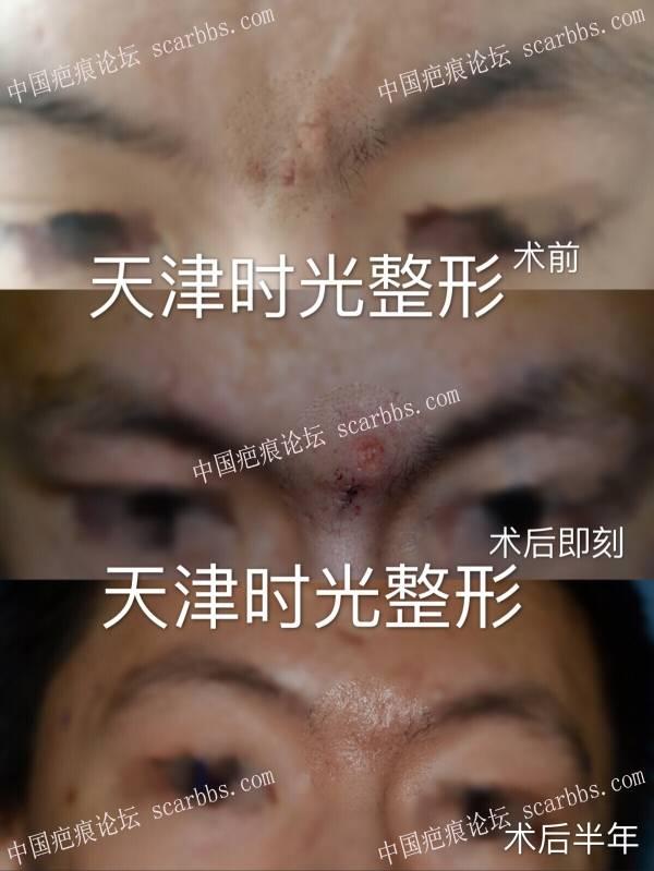 痘坑切缝+疤痕磨削术后半年对比29-疤痕体质图片_疤痕疙瘩图片-中国疤痕论坛