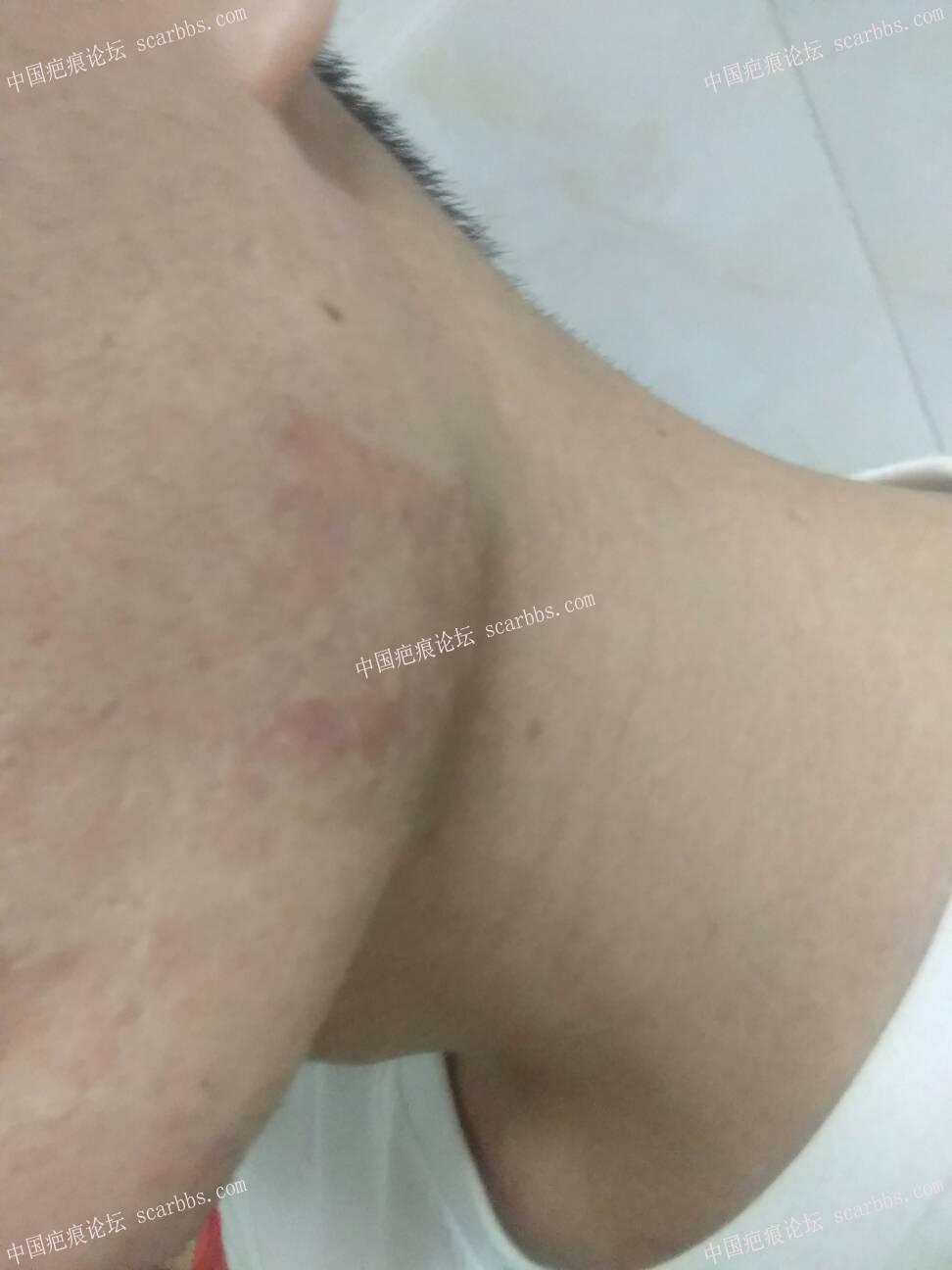 北京疤康——治疗疤痕疙瘩最终站