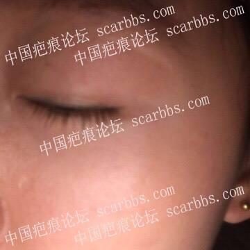 面部十几年凹陷疤痕在杨教授这里切除了60-疤痕体质图片_疤痕疙瘩图片-中国疤痕论坛