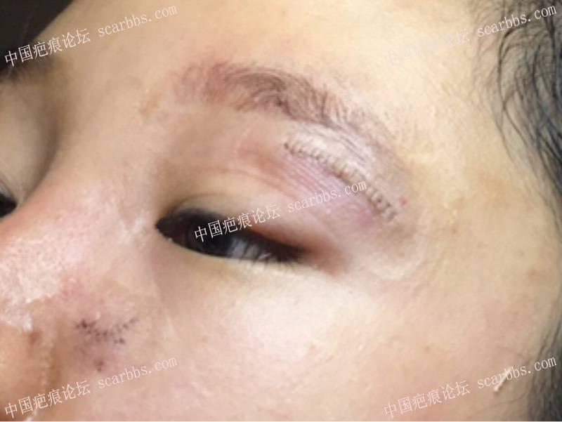 面部十几年凹陷疤痕在杨教授这里切除了45-疤痕体质图片_疤痕疙瘩图片-中国疤痕论坛