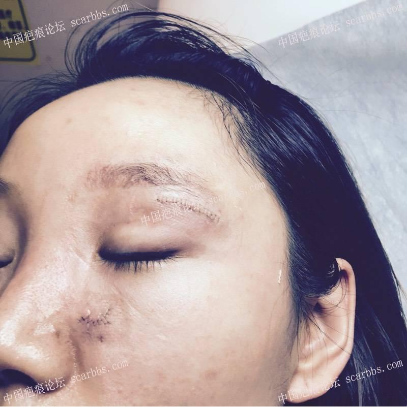 面部十几年凹陷疤痕在杨教授这里切除了61-疤痕体质图片_疤痕疙瘩图片-中国疤痕论坛