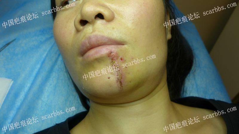 下巴十五年的疤痕终于如愿切缝了 下巴疤痕,陈旧性疤痕,手术切缝,杨东运教授