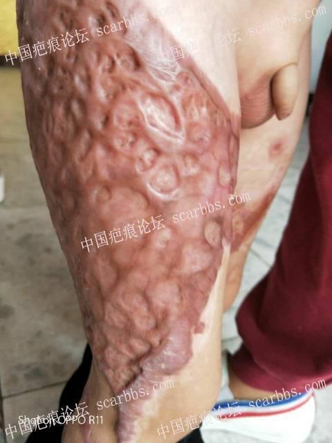 烧烫伤快2年了,增生严重19-疤痕体质图片_疤痕疙瘩图片-中国疤痕论坛