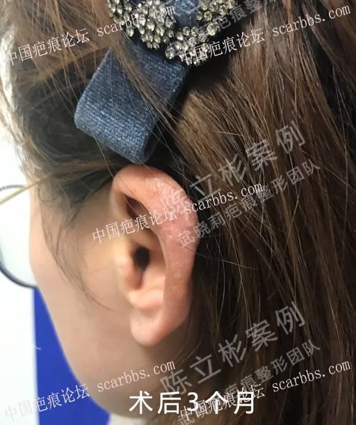 耳部疤痕疙瘩术后8个月复诊记录54-疤痕体质图片_疤痕疙瘩图片-中国疤痕论坛