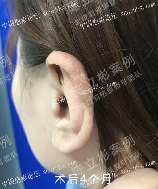 耳部疤痕疙瘩术后8个月复诊记录82-疤痕体质图片_疤痕疙瘩图片-中国疤痕论坛