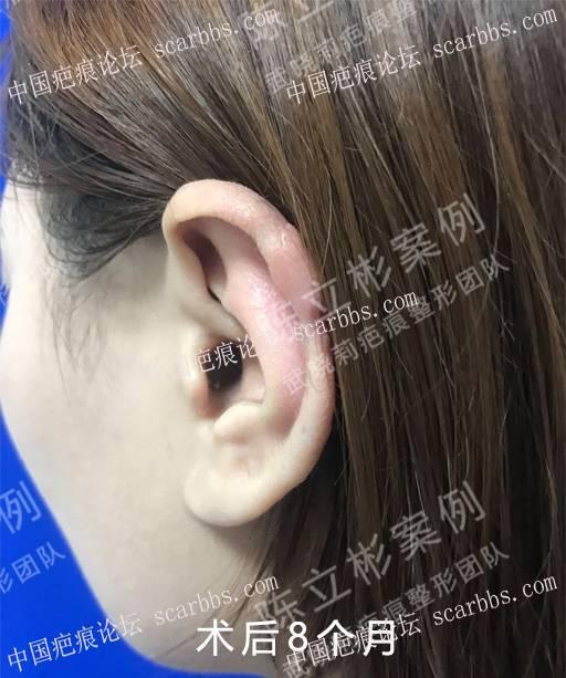 耳部疤痕疙瘩术后8个月复诊记录88-疤痕体质图片_疤痕疙瘩图片-中国疤痕论坛