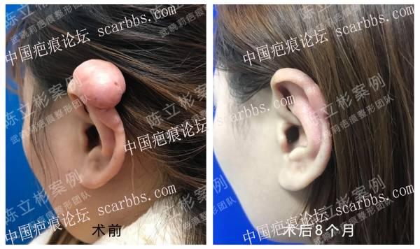 耳部疤痕疙瘩术后8个月复诊记录69-疤痕体质图片_疤痕疙瘩图片-中国疤痕论坛