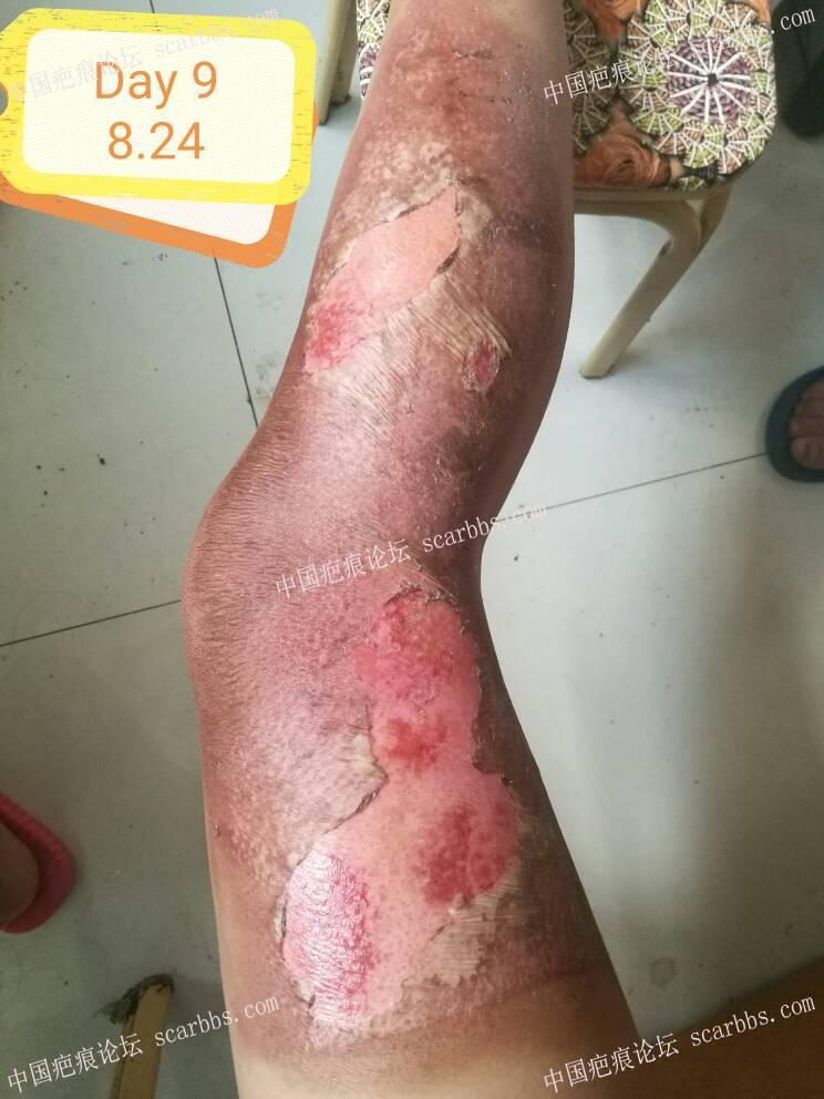 腿部烫伤疤痕恢复,一阶段 腿部烫伤,治疗历程