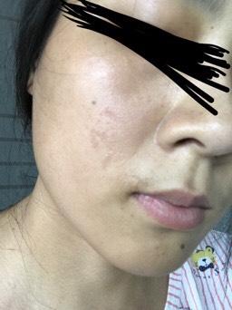 表皮缺失的色素疤痕如何治疗46-疤痕体质图片_疤痕疙瘩图片-中国疤痕论坛