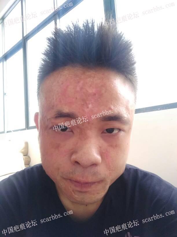 面部大面积烧伤疤痕,激光改善有限