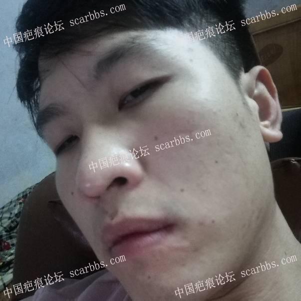 面部十多年的疤痕,如何去除57-疤痕体质图片_疤痕疙瘩图片-中国疤痕论坛