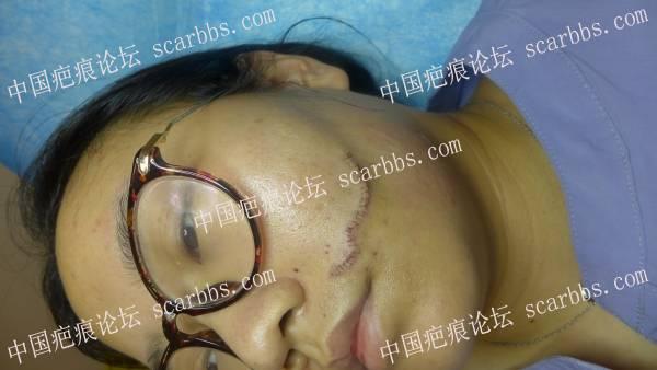 左脸疤痕8.23切除手术持续反馈贴 面部疤痕 手术切缝,杨东运教授,