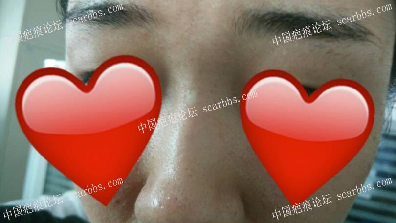 鼻子上色脱白色疤痕如何治疗35-疤痕体质图片_疤痕疙瘩图片-中国疤痕论坛