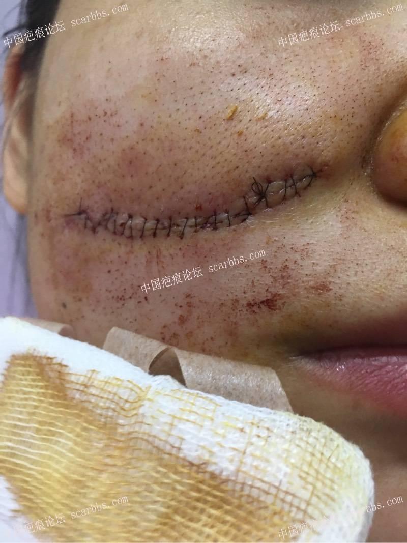 面部疤痕今天做了切除2-疤痕体质图片_疤痕疙瘩图片-中国疤痕论坛