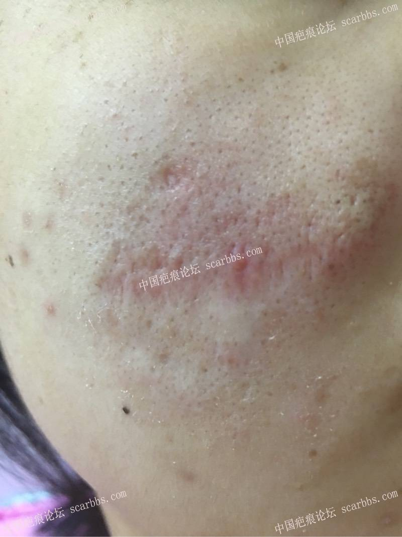 面部疤痕今天做了切除26-疤痕体质图片_疤痕疙瘩图片-中国疤痕论坛