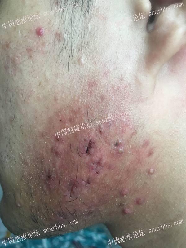 脸部怎么贴3M免缝胶带以及美皮护35-疤痕体质图片_疤痕疙瘩图片-中国疤痕论坛