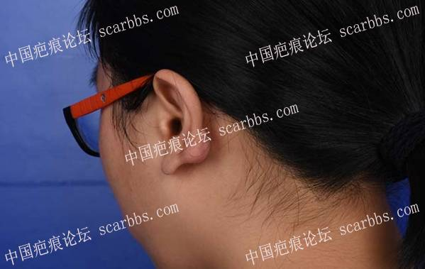 """【疤友治疤第6期】""""橙丝带疤痕公益""""帮助我彻底分离反反复复的耳廓结节48-疤痕体质图片_疤痕疙瘩图片-中国疤痕论坛"""