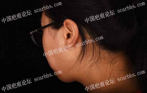 """【疤友治疤第6期】""""橙丝带疤痕公益""""帮助我彻底分离反反复复的耳廓结节21-疤痕体质图片_疤痕疙瘩图片-中国疤痕论坛"""