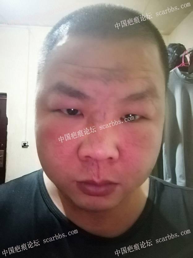 五年前车祸疤痕,还能去掉吗53-疤痕体质图片_疤痕疙瘩图片-中国疤痕论坛