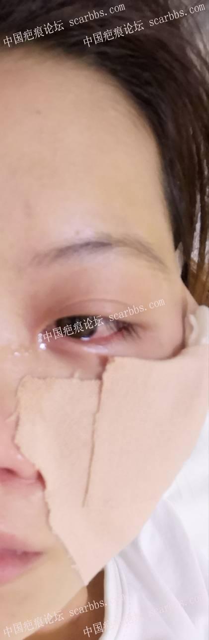 9月12号面部疤痕切缝67-疤痕体质图片_疤痕疙瘩图片-中国疤痕论坛