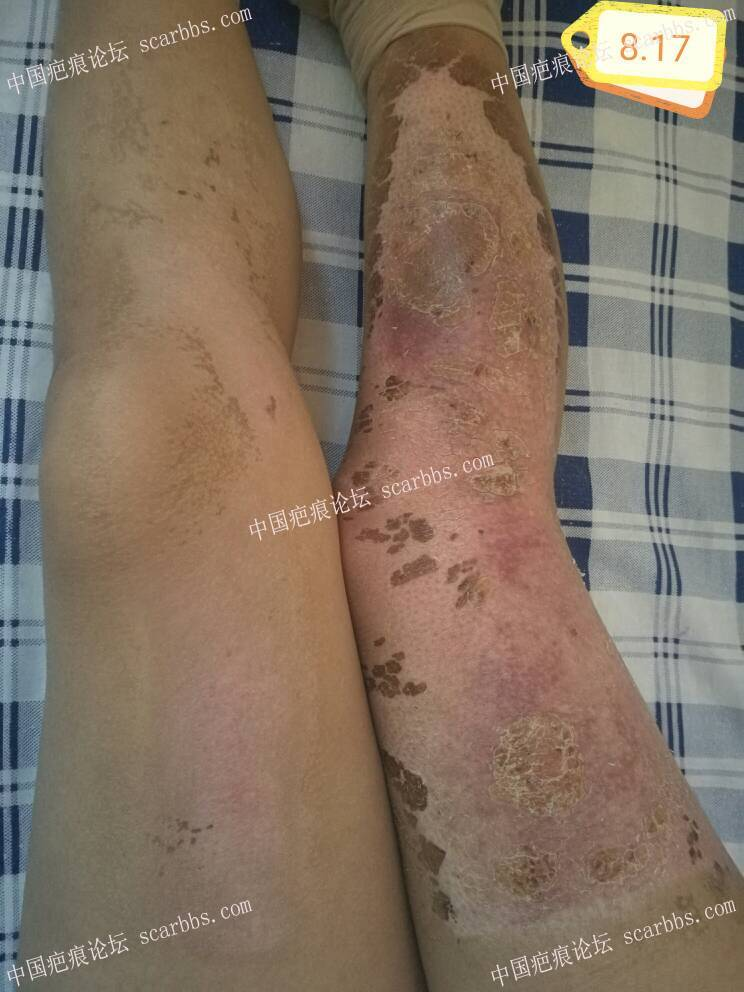 腿部烧伤恢复,二次记录 记录恢复,烧伤疤痕