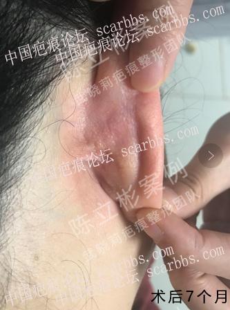 耳部疤痕疙瘩术后7个月复诊记录 耳背疤痕疙瘩,手术切除,术后放疗,加压护理