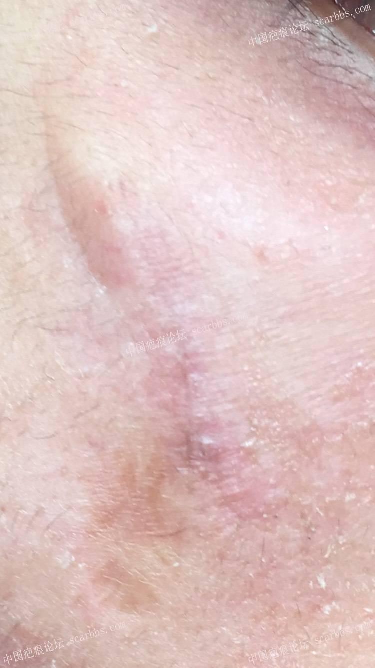 仙卡疤痕敌转手,我的疤痕用不上,能用上的联系73-疤痕体质图片_疤痕疙瘩图片-中国疤痕论坛
