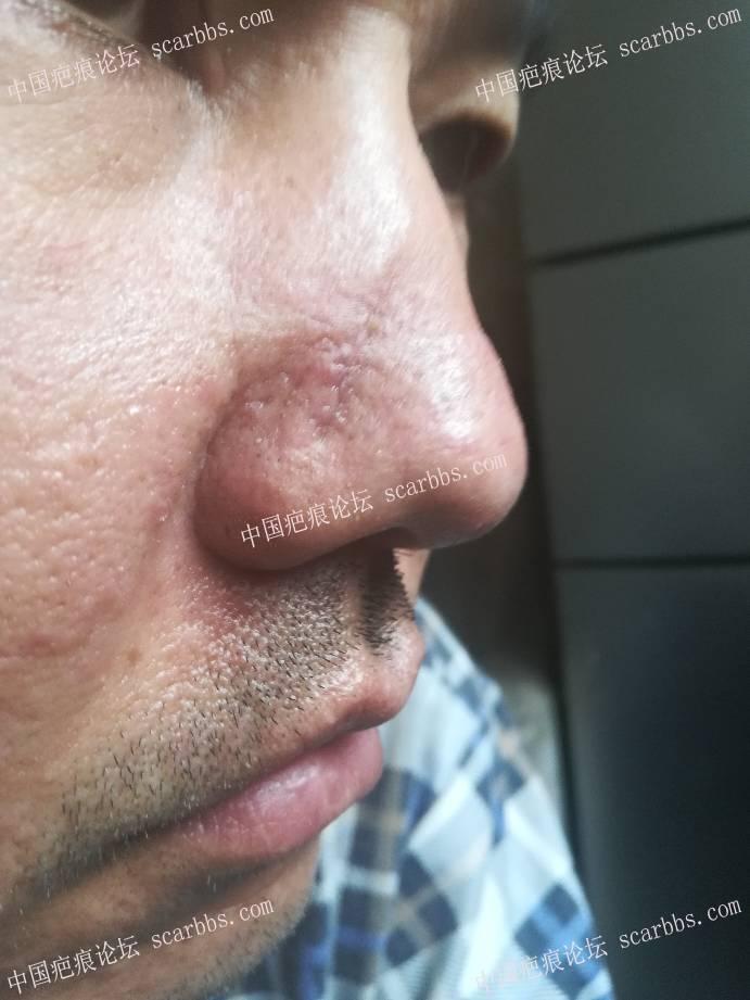 鼻部疤痕切除拆线第十天