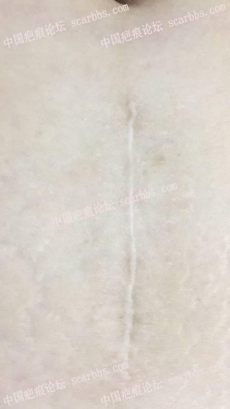 陈立彬疤痕讲堂:剖腹产手术疤痕