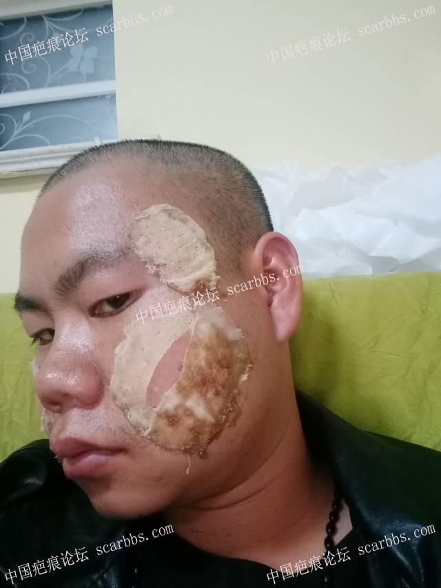 10月13日天津青春痘坑修复 痘坑疤痕,磨削,切缝,天津时光