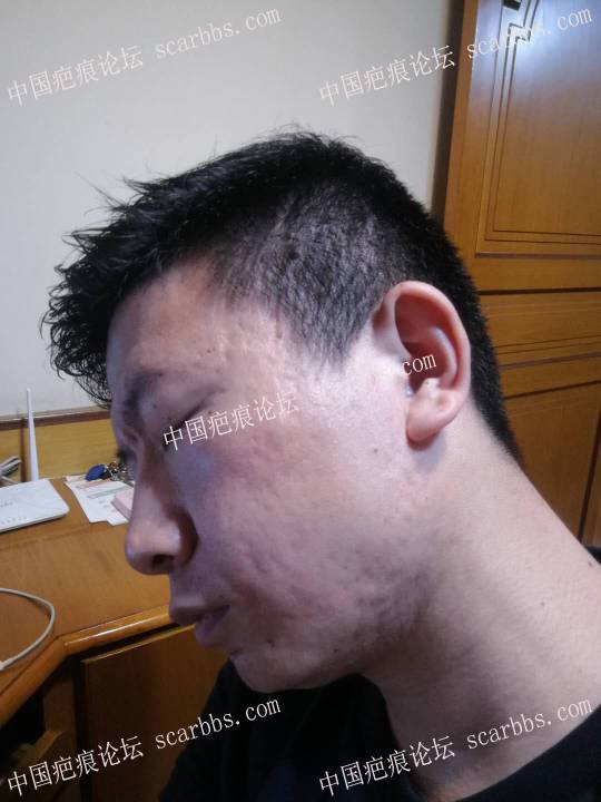 15年的痘坑,做的面部提拉、磨削和切缝 面部痘坑,面部提拉,磨削,切缝